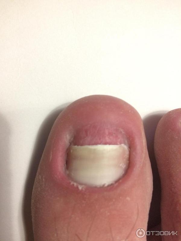 Микостоп от грибка ногтей на руках