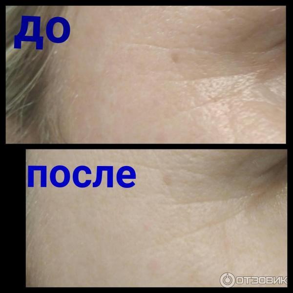 Омоложение лица с помощью димексида и солкосерила