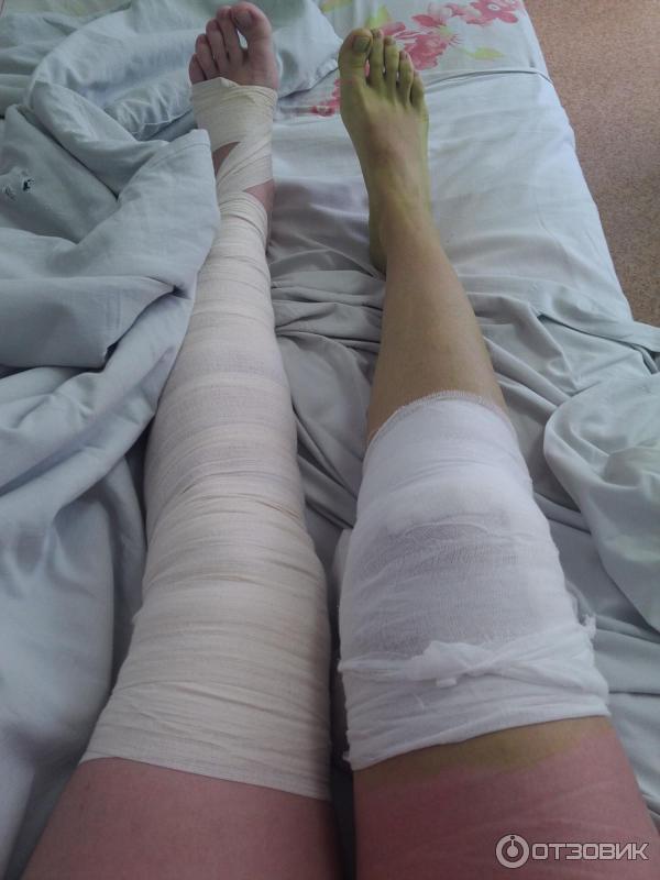 Сделал артроскопию коленного сустава как лечить артроз плечевого сустава лекарства