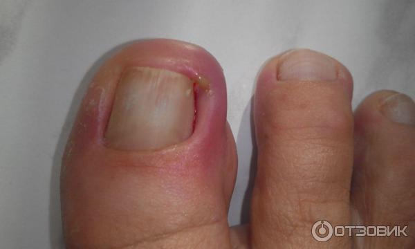 Кто делал коррекцию вросшего ногтя