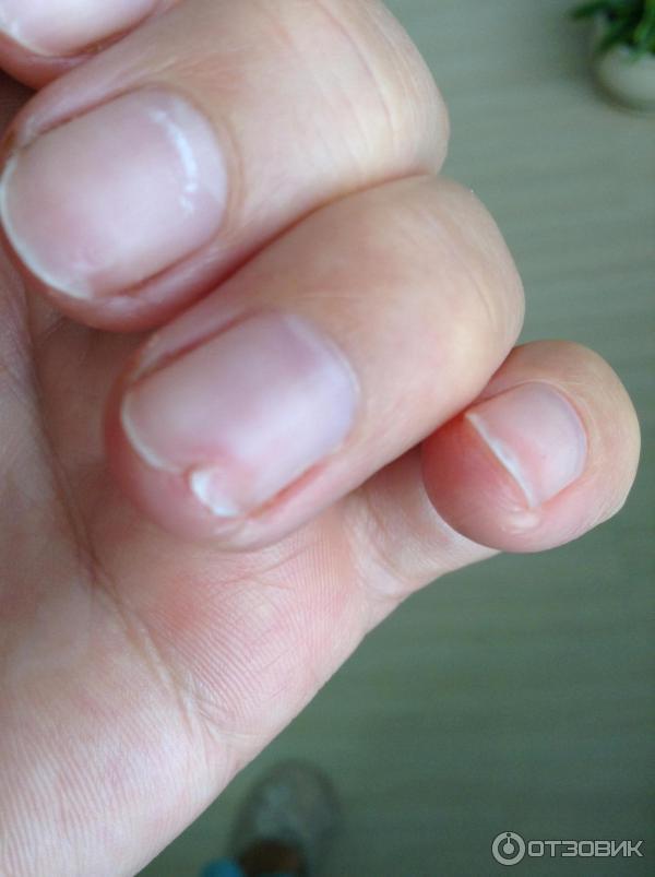враг ногти после гель лака фото фанатов она интересна
