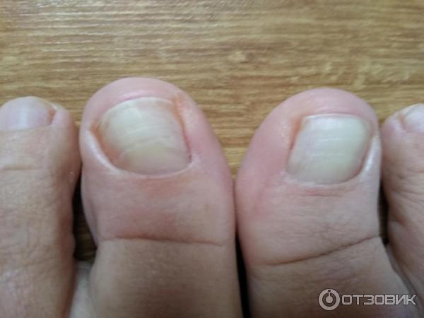 Лазерная коррекция вросшего ногтя в уфе